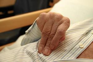 Organisch gesunde Hand, seit sieben Jahren durch Schlaganfall funktionslos (Foto: Alexander Mayer)